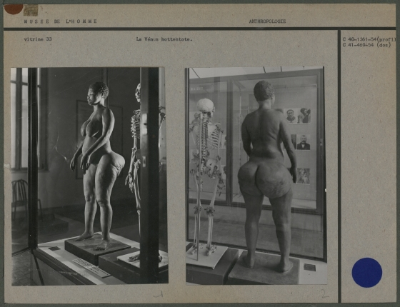 "Saartje Baartman's earthly remains and a plaster cast of her body were put on display at the ""Museum of Man"" in Paris, where they remained as late as 1975 before being returned to her home country in 2002."