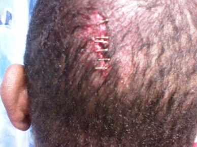 The officer injured Laws so badly that the skin on the back of his head had to be stitched back together.
