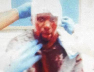 Chance McRody, pictured here, was viciously targeted and attacked at Rikers Island - reportedly by other inmates. Officers at Rikers have  in the past been indicted once it was discovered that they'd coordinated these attacks themselves.
