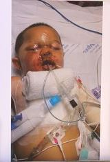 """The injuries to Bou Bou's face and the collapse of one of his lungs were caused by a police dropping a """"flash bang"""" grenade in the crib where he was sleeping; part of a drug raid which failed to locate any drugs whatsoever."""