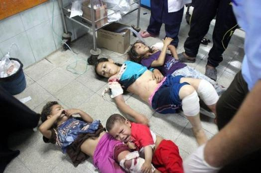 Injured children after four Israeli shells hit a UN school being used to shelter refugees