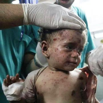 Baby hit by shrapnel