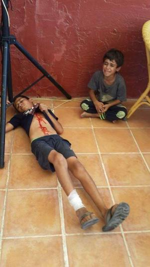 Injured kids