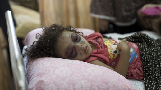 2 year-old Naama Abu Foul undergoing treatment at Al-Shifa after being attacked by an Israeli bomb