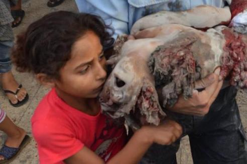 Imagine this was your relative this was done to... Do you think that in this young girl's mind Israel has any intention of living in peace with her?
