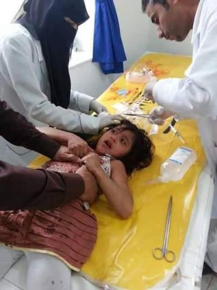a young casualty of the war on Yemen