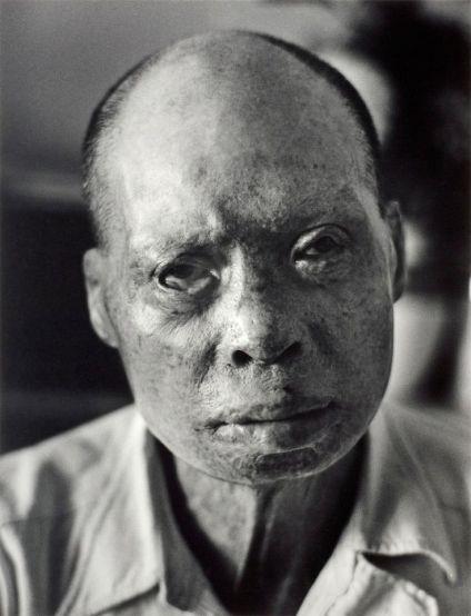 Hiroshima burn victim and survivor