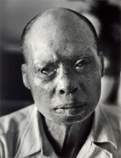 Hiroshima burn victim and survivor