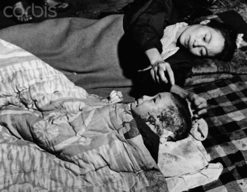 A woman cares for a scarred young patient; Hiroshima.