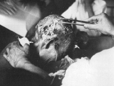 A doctor attempting to tend to a victim burned in the Hiroshima atrocity.