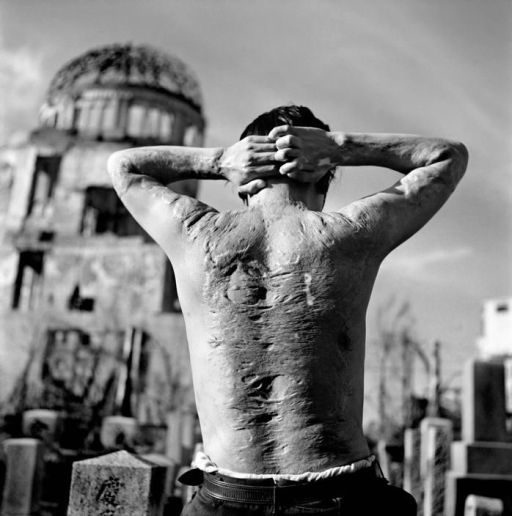 A Hiroshima survivor forever bears the marks of humanity's cruelest aggression and barbarity; in front of one of the few buildings in Hiroshima to survive. (It has been kept as it was left to the present day, now know as the Memorial to Peace.)