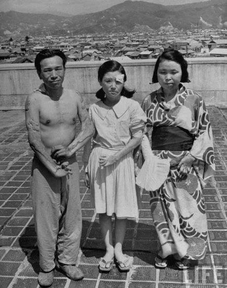 A picture of three survivors of the Hiroshima bombing taken in 1947; LIFE Magazine.
