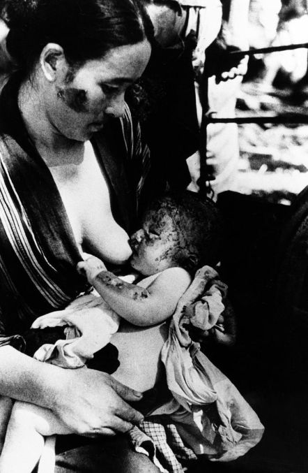 A mother who survived the attack on Nagasaki breastfeeds her child; August, 1945.
