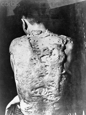 A Nagasaki survivor developed large tumors on his back