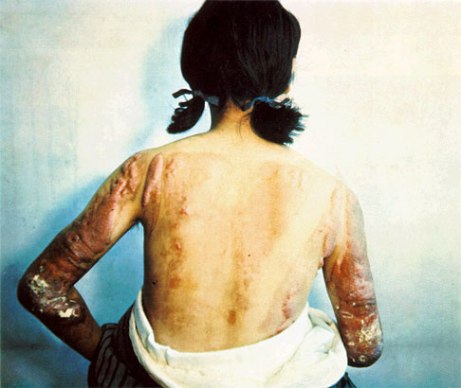 an atomic bombing burn victim several years after the bombing