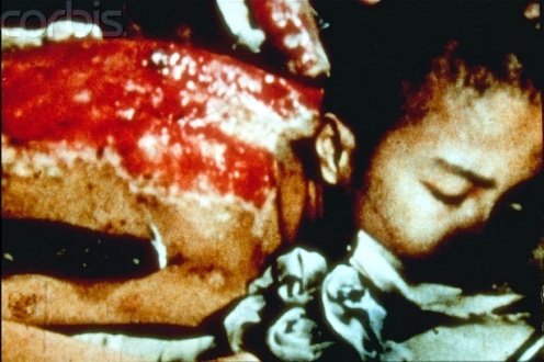 Sumiteru Taniguchi was 16 years old when the nuclear bomb made of plutonium was dropped on Nagasaki. He had to lay on his stomach for three whole years after the skin was completely burned off his back, all the while
