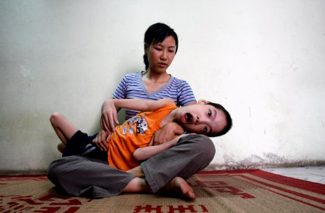 Ten-year-old Pham Duc Duy is cradled in the arms of his mother in their house in Hanoi